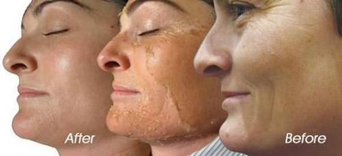 Chemical Peel Pictures